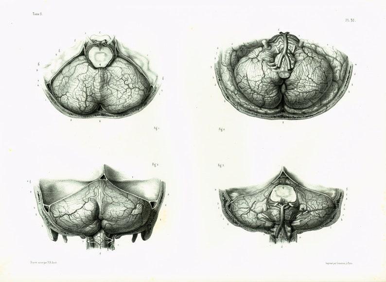 1844 Original Antique Brain Print. Human Brain. Nervous image 0