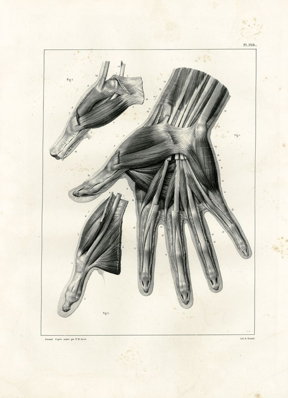 1831 Hand Arms Fingers Thumb Digit Anatomy Orthopedic Print Etsy