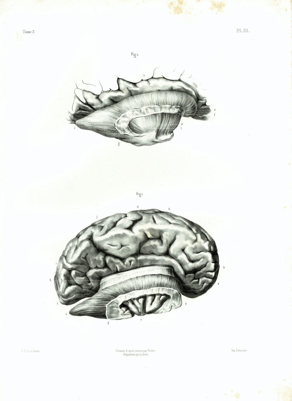 1844 XL Antique Brain Print Human Skull Brain Anatomy | Etsy
