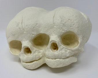 Conjoined twins fetal skull replica