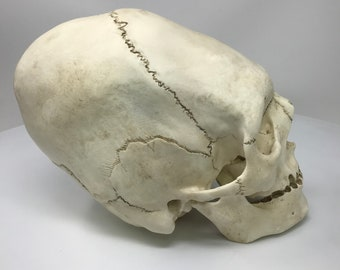 Elongated Skull Replica