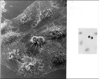 Poster, Many Sizes Available; Hela Cells Dividing Under Electron Microscopy Henrietta Lacks