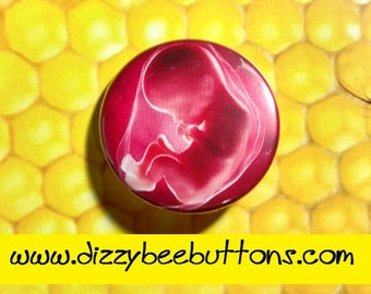 New Life - Pinback button fridge magnet keychain - baby fetus baby shower parent child miracle