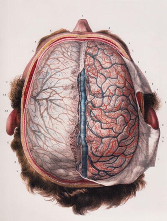ML11 Médicos cerebro humano vista superior cartel quirúrgico