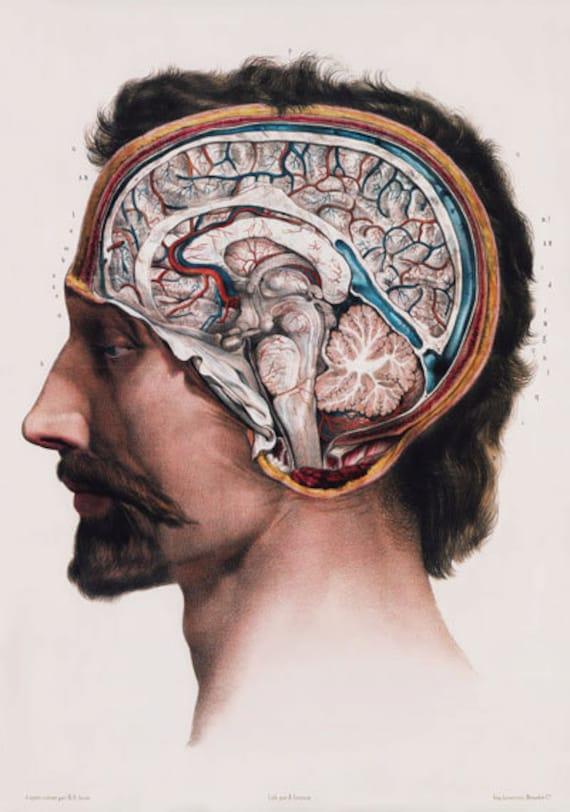 ML09 Cerebro humano médico anatomía quirúrgica Poster volver a | Etsy