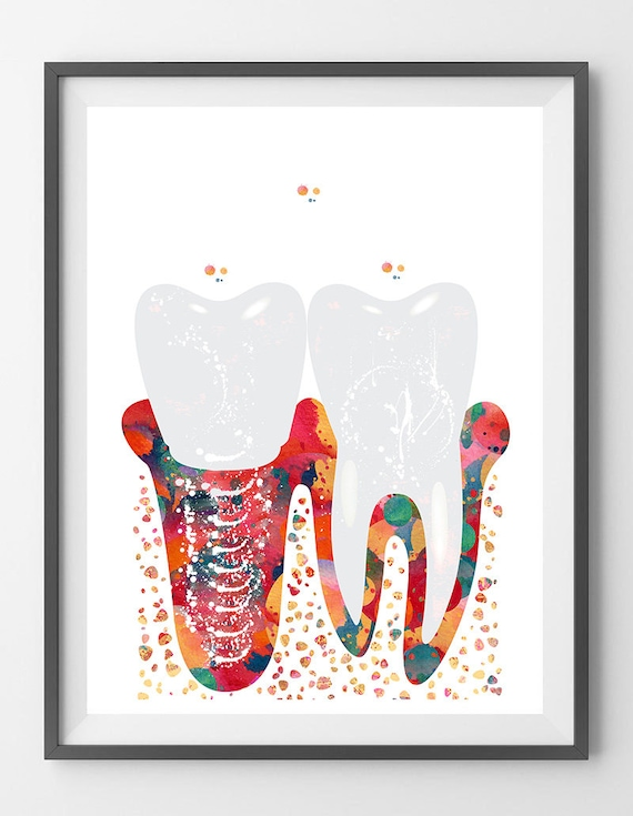 Dental Molar Implant Watercolor Print Anatomy Art Poster Etsy