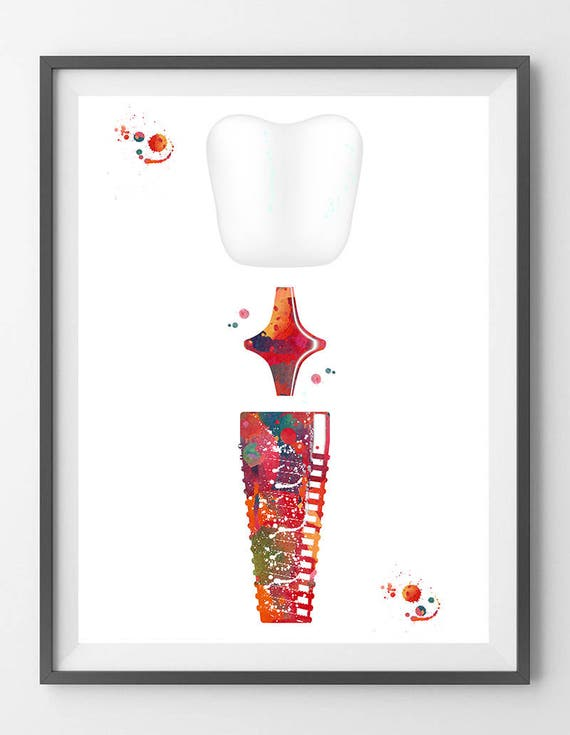 Dental Implant Watercolor Print Dental Surgery Anatomy Art Etsy