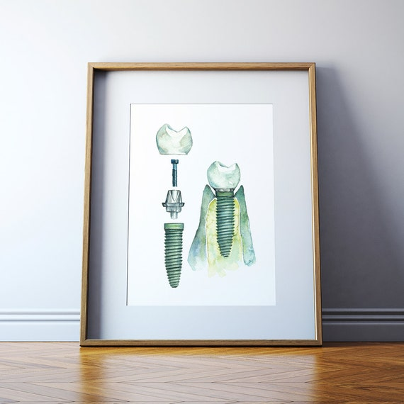 Dental Implant Watercolor Art Print Dental Anatomy Art Etsy