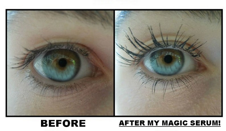 Eyelash and Eyebrow Growth Serum and makeup remover Comes in image 0