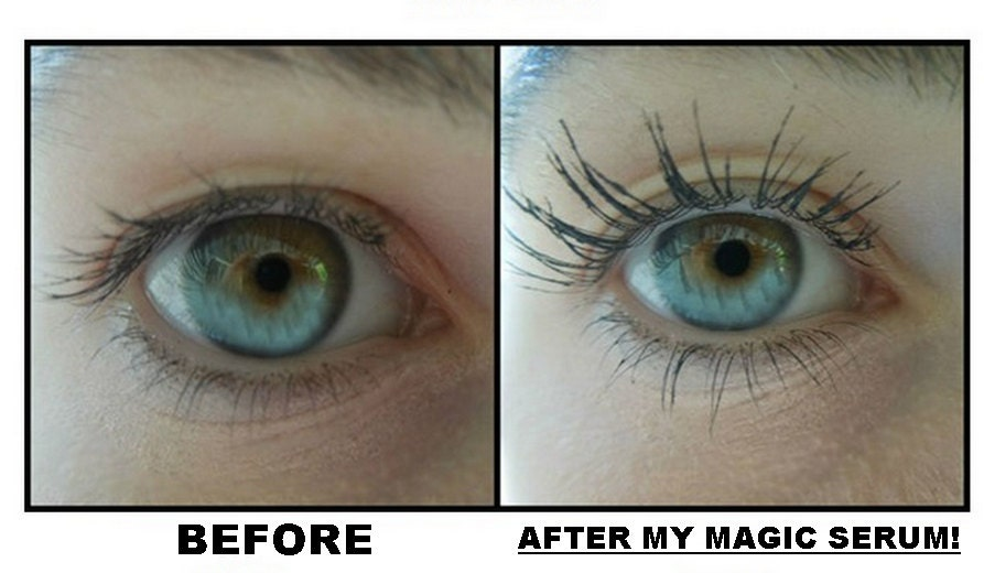 Eyelash And Eyebrow Growth Serum And Makeup Remover Also Etsy
