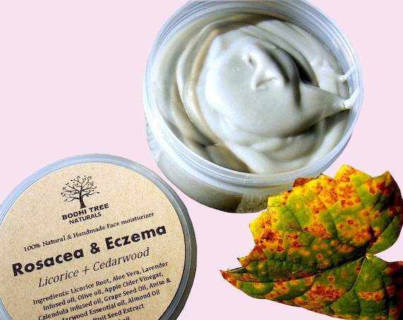Eczema/Rosacea/Dermatitis Balm - Rosacea cream - Eczema Cream - Eczema balm - Skin Irritation balm - Redness relief - Handmade SkinCare/