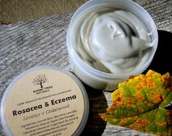 4oz Eczema/Rosacea/Dermatitis Balm - Rosacea cream - Eczema Cream - Eczema balm - Skin Irritation balm - Redness relief - Handmade SkinCare/