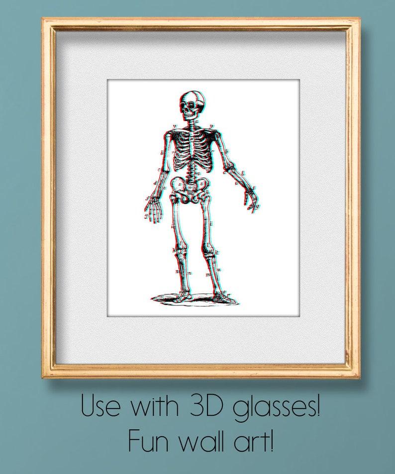 3D Stereoscopic Skeleton, 3D Skeleton Art, Anaglyph Printable, Anaglyph  Skeleton, Stereoscope Skeleton, Anatomical Skeleton, Radiology Art