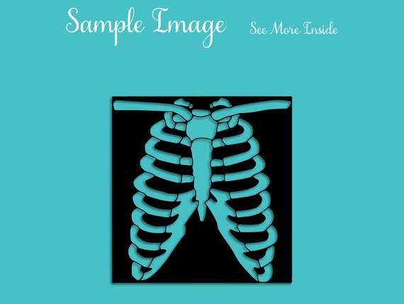 X-ray of Chest Clipart transparent PNG - StickPNG