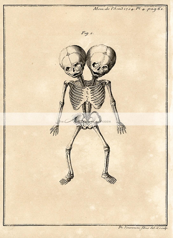 Instante para imprimir descargar anatomía esqueleto siameses | Etsy