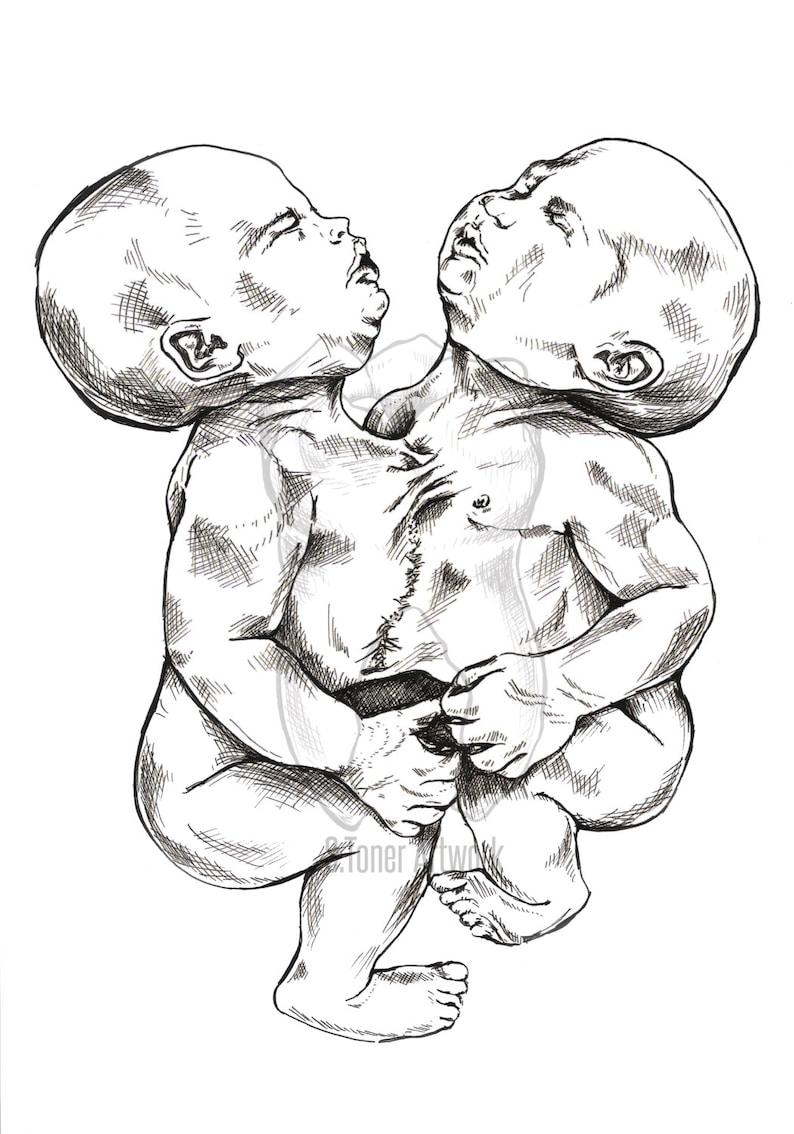 свежие близнецы картинки нарисовать операции