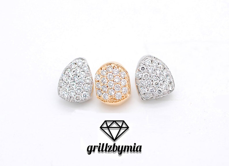 GrillzbyMia Custom 10K 14K Gold & Diamond Grillz Iced Out Single Tooth Cap  Diamond Slugz Custom Gold Grillz Permanent Grillz Free Mold Kit