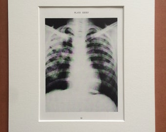 1941 Chest & Lung X-Ray Original Vintage Print - Mounted and Matted - Silicosis - Radiology - Medical Decor - Science - Available Framed