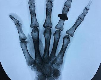 1935 Original Vintage Print - Available Framed - Radiology - Rheumatic Arthritis - Medical Decor - X Ray - Bones - Gift Idea