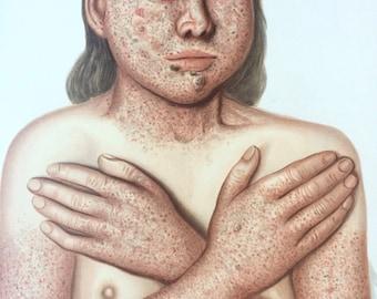 1903 Extra Large Original Antique Anatomical Poster - Skin Disease - Anatomy - Science - Dermatology - Morbid Bizarre Wall Decor