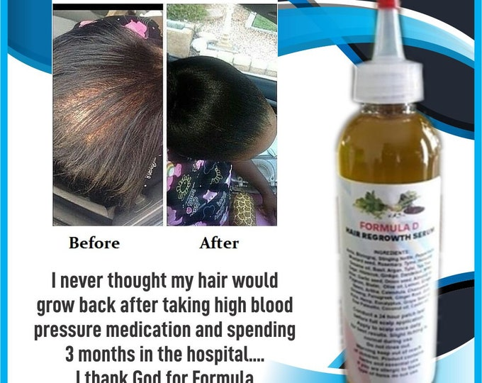 Extra Strength Formula D Hair Growth Oil With Amla Coconut Oil JBCO  For Receding Hairline DHT Blocker Men or Women Alopecia