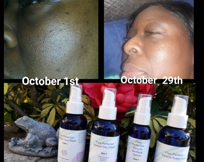 Flaw Perfection Miracle Skin Care System For Dark Spots -Pimples-Blemishes -Uneven Skin Tone-Imperfections