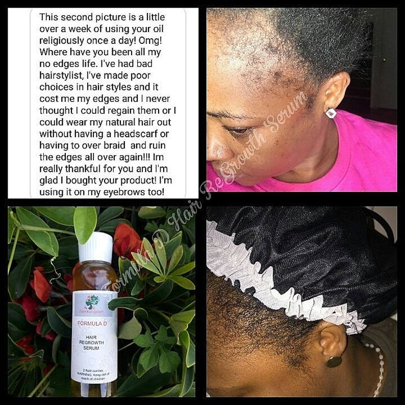 Hair Oil Formula D Hair ReGrowth Serum For Fast Hair Growth DHT Blocker For  Men And Women With Jamaican Black Castor Oil,
