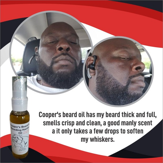 Cooper's Beard Oil And Receding Hairline Oil /For Men/ Mustache Growth/Super Hairline Hair Growth Bald Spots Potent Proven Order Today
