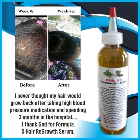 Private Label Hair Care Products 5 Gallons Potent Hair Growth Etsy