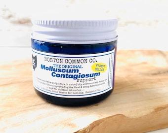 Molluscum Contagiosum Support Cream / Aid in Molluscum Treatment / Doctor recommended Molluscum Support