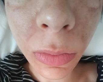 Vegan Lactic Acid acne & scars at home Peel 50% BestSeller! Full Strength ,wrinkles anti aging exfoliating skin