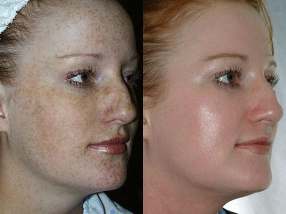 Lactic acid facial peels