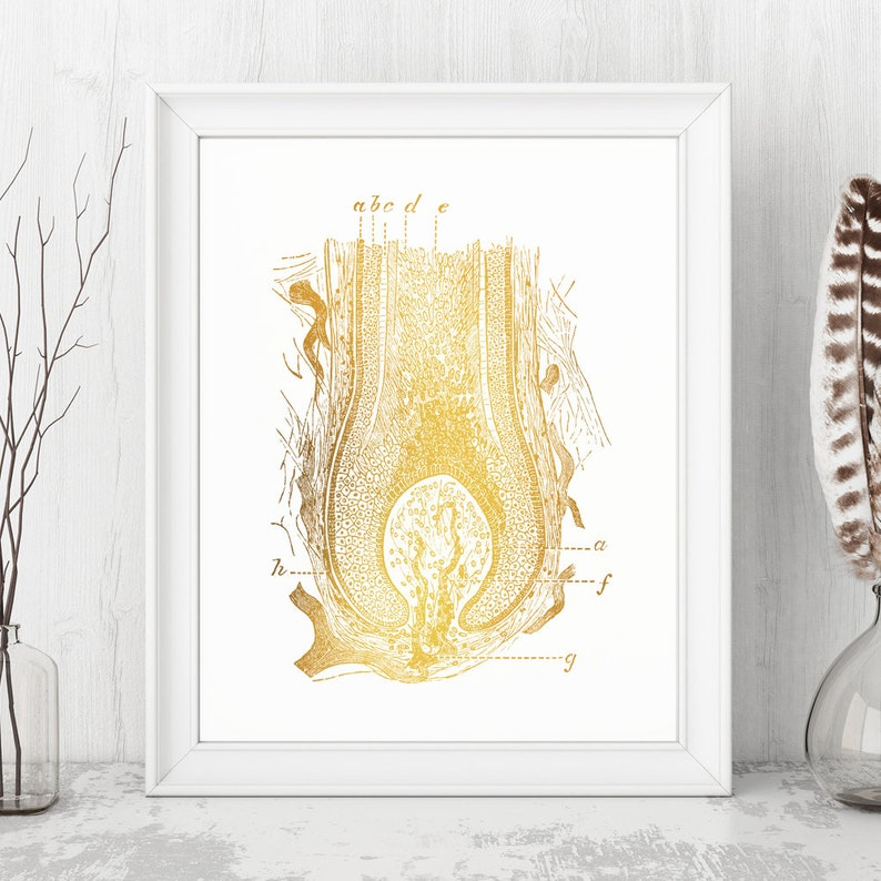 Dermatology Art, Dermatology Print, Dermatology Pathology, Dermatology Wall  Art, Dermatology Nurse, Dermatology Office Decor - Gold Foil Art