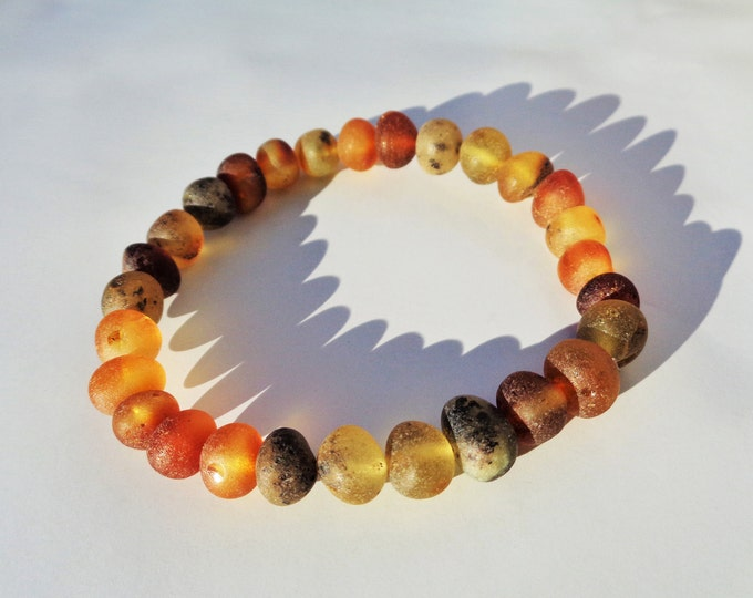 Real Baltic Amber Bracelet, Unpolished Amber Beads Bracelet, 100% Natural Amber for Pain Relief, Arthritis, Joint Pain, 18 cm