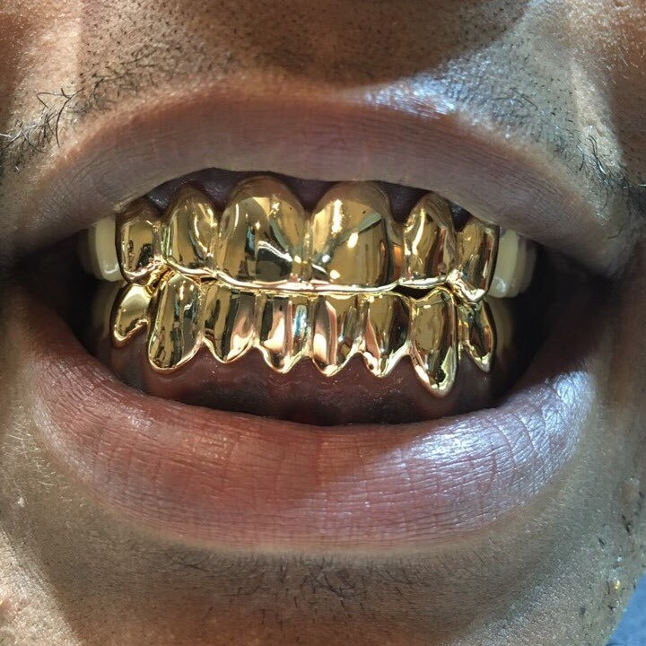 18K Solid Yellow Gold Custom fit REAL Gold Grill Grillz Gold Teeth