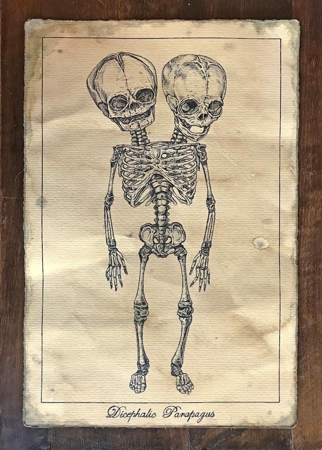 Esqueleto de gemelos siameses Dibujo original envejecido | Etsy