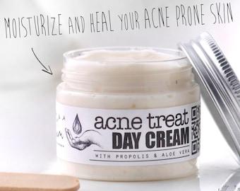 ACNE TREAT Day Cream, Moisturizing facial cream, Propolis, Aloe Vera, Anti Acne, Herbal Acne Treatment, Organic Facial Cream, Elixirium