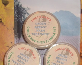 Under Breast Rash Treatment. Handmade Salve, Balm for Under and Between Breasts Rash.  Natural, Cools, Soothes, Eliminates.