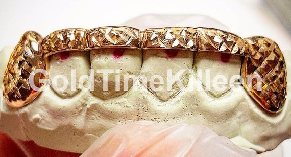 14k Yellow or White Silver Beyonce Rihanna Designer Style Teeth Caps Custom Bottom Drip Wet Melting Grillz Handmade in Genuine Gold 8k 10k