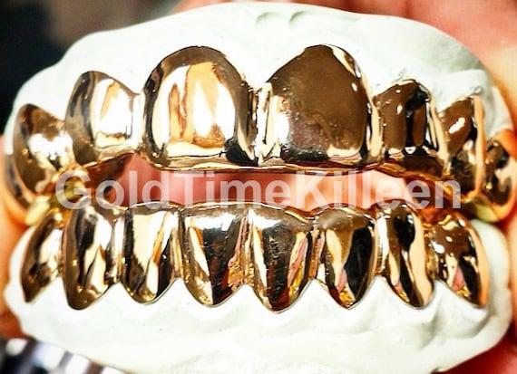 5 Teeth 10k Gold Custom Grillz Top