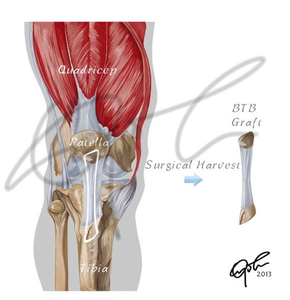 OS de la greffe osseuse rotulienne pour chirurgie LCA - télécharger  imprimable, reconstruction du LCA, chirurgie LCA, Btb greffe, l'anatomie  humaine, ...