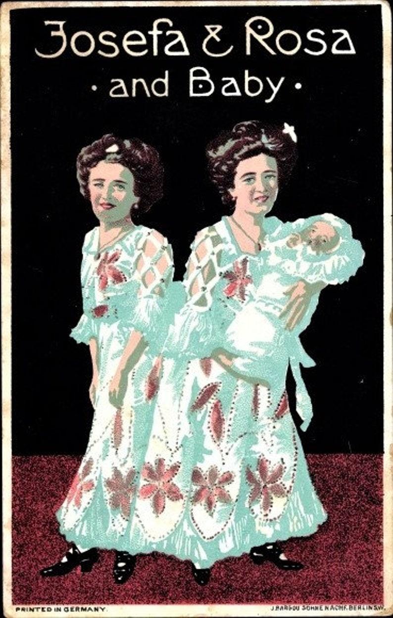Siamesische Zwillinge datieren Website