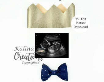 It's a Boy Gender Reveal for Social Media Announce Template