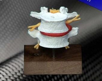 Anatomy Model L4/L5 Lumbar Set on Wood Base (Model #HD104) - American Anatomical