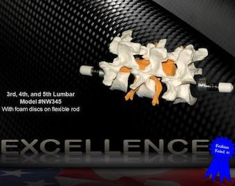 Lumbar Anatomical Model with Foam Discs L3/L4/L5 (Model #NW345) - American Anatomical