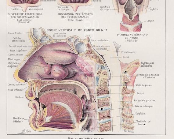 Nase Sinus Kopf Anatomie Platte Französisch Jahrgang Druck | Etsy