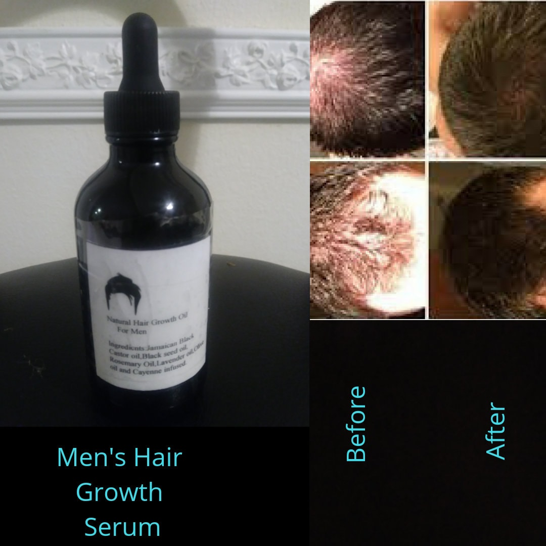 ca76211e4a7 Natural Hair Growth Oil for Men with Blackseed oil and herbs | Etsy