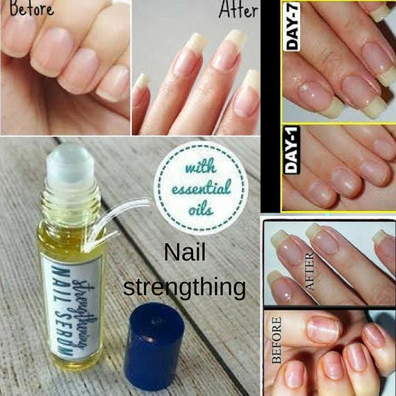 Strengthening Nail Serum for Weak, Dry, Brittle Fingernails It nourishes  and strengthens fingernails for fast healthy growth it works!