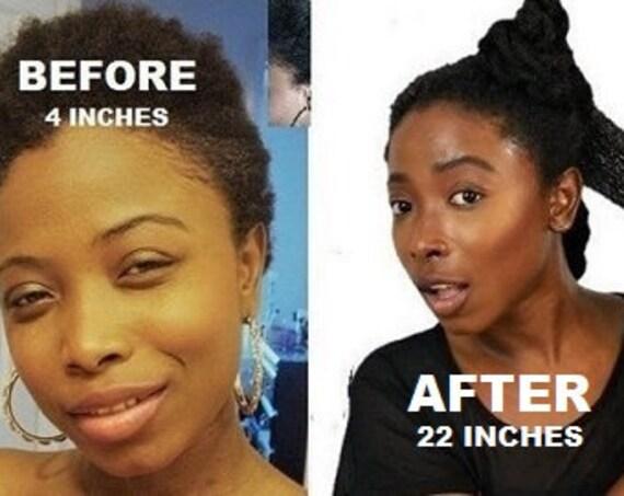 Hair Growth Solution Co-Wash* SHAMPOO * Scalp Renewal Detox 16oz, All Hair Types, Dreads, Braids, 4c, KinkyCurly, Fermented Rice Herbal Wash
