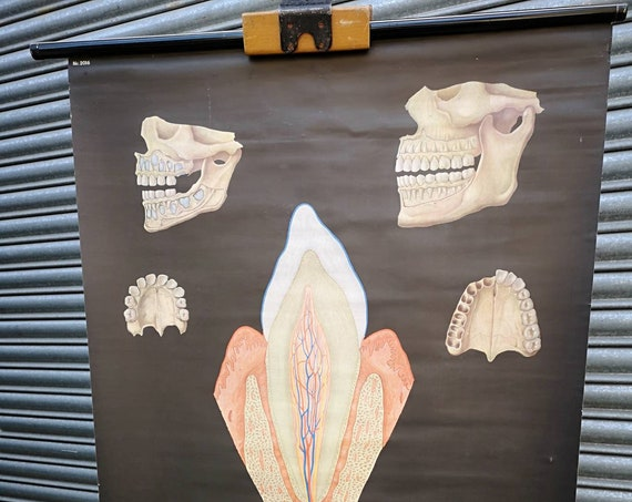 1960s Anatomical Wall Chart Of Teeth By The German Hygiene Museum Dresden